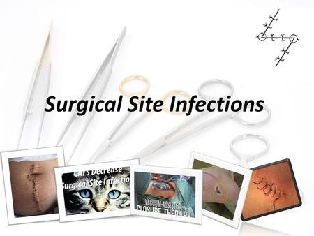 Surgical Site Infections. SSIs are infections of the tissues, organs, or spaces exposed by surgeons during performance of an invasive procedure. an.