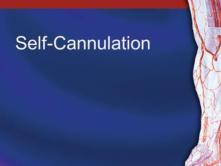 Self-Cannulation. 2 Why Offer Self-Cannulation? Benefits for patients: –Less painful –Less likely to promote fear and anxiety –Less stressful –Greater.