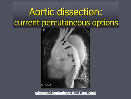 Aortic dissection: current percutaneous options Advanced Angioplasty BSET Jan 2008.