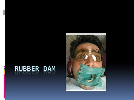 Why use a rubber dam?  Improves access and visibility of teeth  Prevents contamination of teeth and dental materials by saliva  Retracts soft tissues.