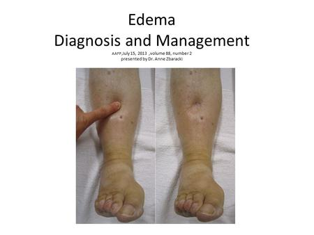 Edema Diagnosis and Management AAFP,July 15, 2013 ,volume 88, number 2 presented by Dr. Anne Zbaracki.