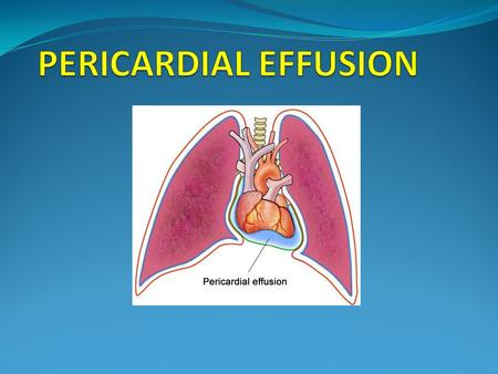 INTRODUCTION Presence of abnormal amount and/or character of fluid in the pericardial space Can be caused by LOCAL/SYSTEMIC/IDIOPATHIC causes Can be ACUTE.