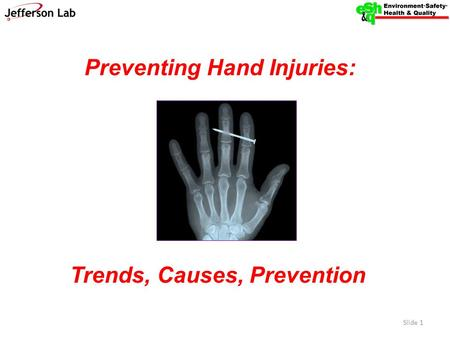 Preventing Hand Injuries: Trends, Causes, Prevention Slide 1.