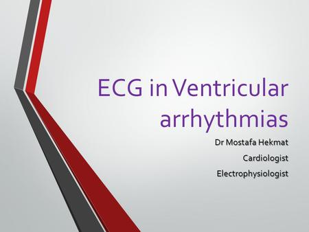 ECG in Ventricular arrhythmias
