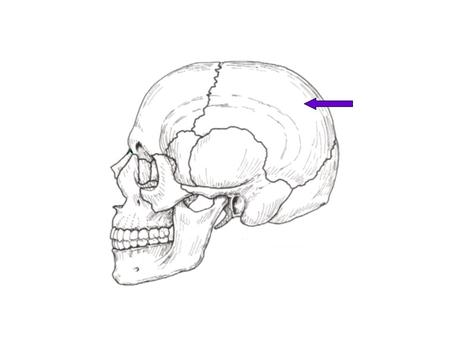 Left Parietal Bone Frontal Bone Sphenoid Bone.