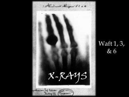 X-RAYS Waft 1, 3, & 6. On a fine day in Germany in 1895… His first experiment with human tissue involved a test subject (his lovely wife Bertha) and her.