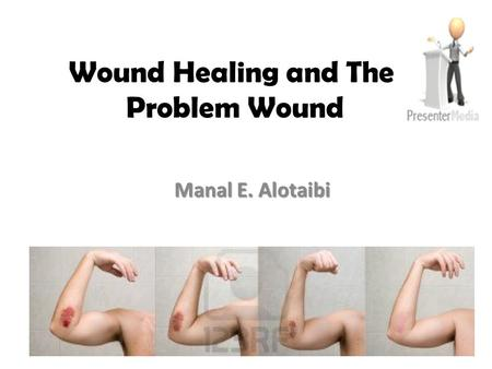 Wound Healing and The Problem Wound Manal E. Alotaibi.