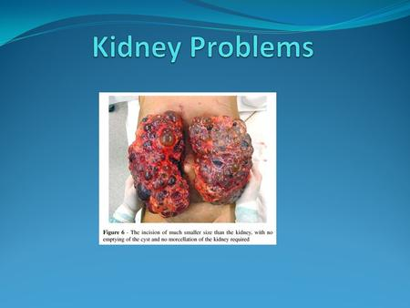 Introduction The body needs the kidneys to be functioning properly in order to maintain homeostasis. Kidneys are very connected with other body systems.