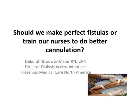 Should we make perfect fistulas or train our nurses to do better cannulation? Deborah Brouwer-Maier RN, CNN Director Dialysis Access Initiatives Fresenius.
