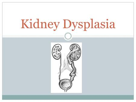 Kidney Dysplasia. What Is It?? (Renal Dysplasia or Multicystic Dysplasia) 'Dysplasia'; abnormality in development A condition that can occur in babies.
