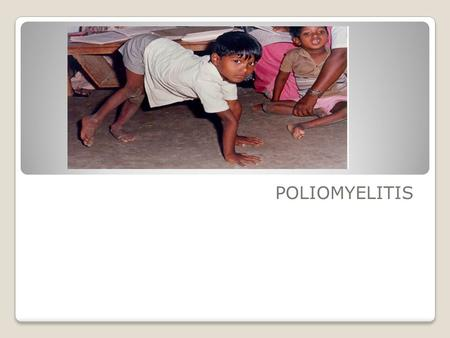 POLIOMYELITIS. AGENT FACTORS: Agent: Poliovirus, - RNA virus, serotype –1,2,3 - Most outbreaks – type 1 -Survive for long periods in external environment.