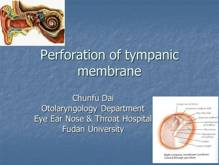 Perforation of tympanic membrane Chunfu Dai Otolaryngology Department Eye Ear Nose & Throat Hospital Fudan University.