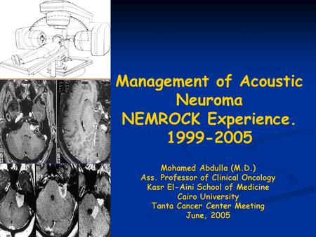 Management of Acoustic Neuroma NEMROCK Experience. 1999-2005 Mohamed Abdulla (M.D.) Ass. Professor of Clinical Oncology Kasr El-Aini School of Medicine.