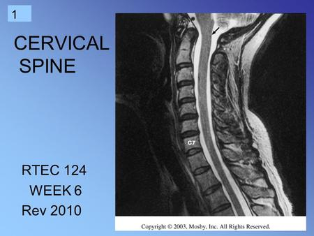 1 CERVICAL SPINE RTEC 124 WEEK 6 Rev 2010. 2 3 4 Review the anatomy.