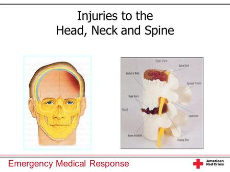 Emergency Medical Response Injuries to the Head, Neck and Spine.