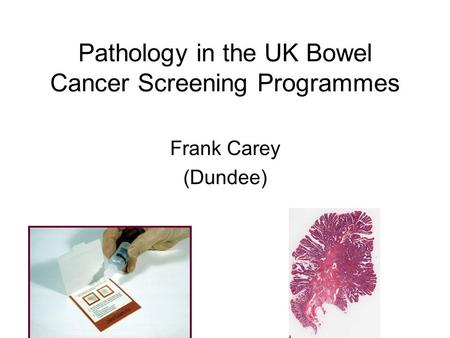 Pathology in the UK Bowel Cancer Screening Programmes Frank Carey (Dundee)