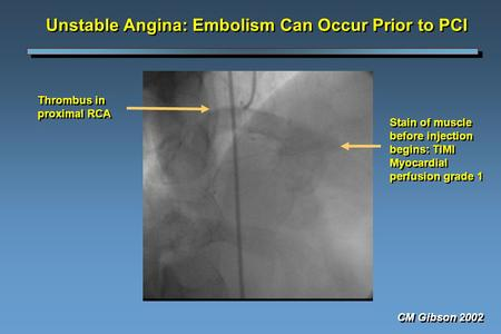 Unstable Angina: Embolism Can Occur Prior to PCI Thrombus in proximal RCA Stain of muscle before injection begins: TIMI Myocardial perfusion grade 1 CM.