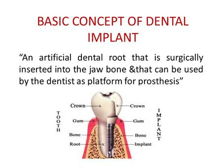 "BASIC CONCEPT OF DENTAL IMPLANT ""An artificial dental root that is surgically inserted into the jaw bone &that can be used by the dentist as platform for."