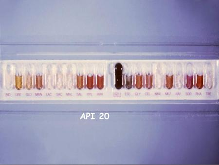 API 20 PRINCIPLE: The API 20E Strip,For Identification Of TheEnterobacteriaceae and other Gram negative rods,Consists of 20 microtubules containing dehydrated.