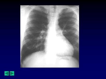 Diagnosis : Coarctation of the Aorta