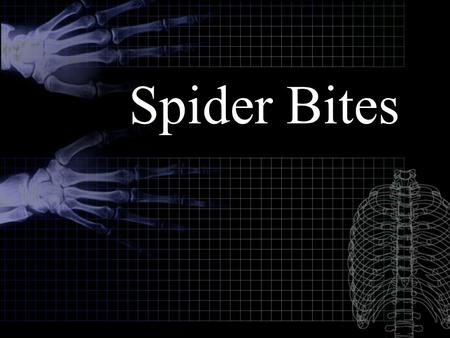Spider Bites. Introduction All spiders are poisonous. Luckily, most spiders are unable to penetrate human skin with their fangs (chelicerae), or the quantity.