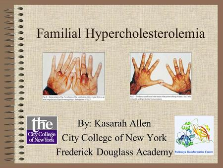 Familial Hypercholesterolemia By: Kasarah Allen City College of New York Frederick Douglass Academy.