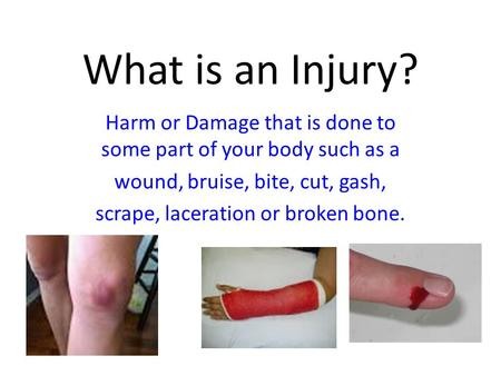 What is an Injury? Harm or Damage that is done to some part of your body such as a wound, bruise, bite, cut, gash, scrape, laceration or broken bone.