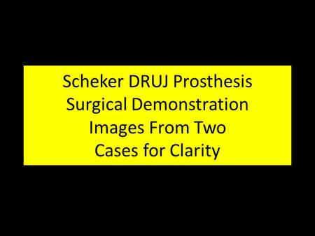 Scheker DRUJ Prosthesis Surgical Demonstration Images From Two Cases for Clarity.