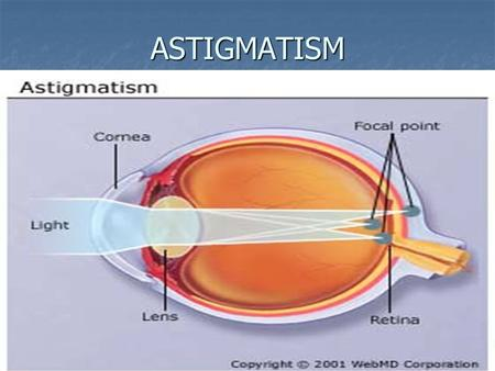 ASTIGMATISM. Astigmatism Astigmatism ASTIGMATISM MEANS THAT THE CORNEA IS OVAL, LIKE A FOOTBALL ASTIGMATISM MEANS THAT THE CORNEA IS OVAL, LIKE A FOOTBALL.