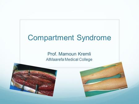 Prof. Mamoun Kremli AlMaarefa Medical College Compartment Syndrome.