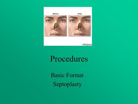 Procedures Basic Format Septoplasty. Objectives Assess the anatomy, physiology, and pathophysiology of the Septoplasty. Analyze the diagnostic and surgical.
