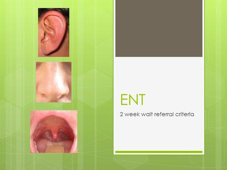 ENT 2 week wait referral criteria. Aims  To learn the ENT 2 week wait criteria.  Please get into groups for my fun quiz!
