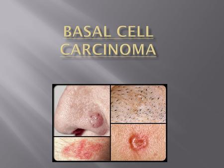  The Basal cell carcinoma (BCC) is the most common form of skin cancer, affecting approximately two million Americans each year. This is the most common.