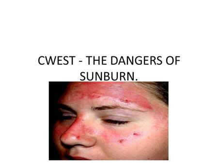 CWEST - THE DANGERS OF SUNBURN.. So, what is the risk of sunburn? Well, a person's risk of getting melanoma (cancer) doubles once she or he has had 5.