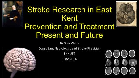 Stroke Research in East Kent Prevention and Treatment Present and Future Dr Tom Webb Consultant Neurologist and Stroke Physician EKHUFT June 2014.