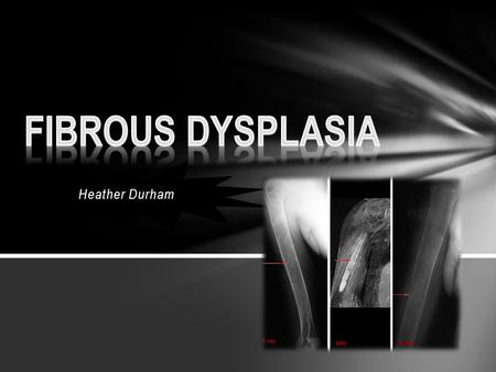 Heather Durham. Fibrous Dysplasia occurs when bone gets destroyed and replaced with bone tissue What is it?