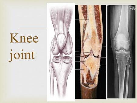  Knee joint.  The Knee Joint  Knee joint:  1- the largest joint in body  2- the most complex one { allow mobility (flexion/extension), stability(weight.