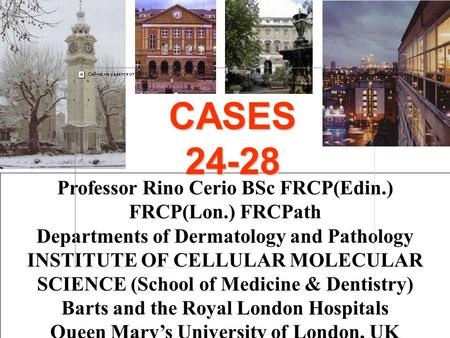 Professor Rino Cerio BSc FRCP(Edin.) FRCP(Lon.) FRCPath Departments of Dermatology and Pathology INSTITUTE OF CELLULAR MOLECULAR SCIENCE (School of Medicine.