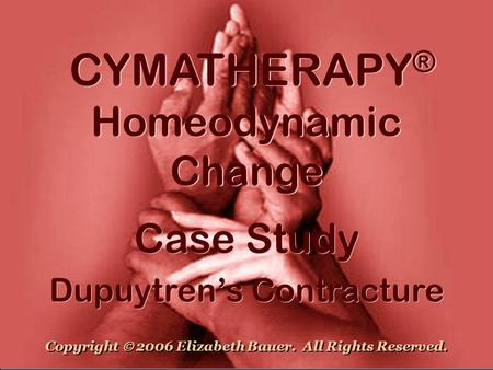 CYMATHERAPY ® Homeodynamic Change Case Study Dupuytren's Contracture Case Study Dupuytren's Contracture Copyright  2006 Elizabeth Bauer. All Rights Reserved.