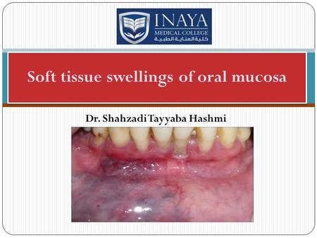 Dr. Shahzadi Tayyaba Hashmi Soft tissue swellings of oral mucosa.