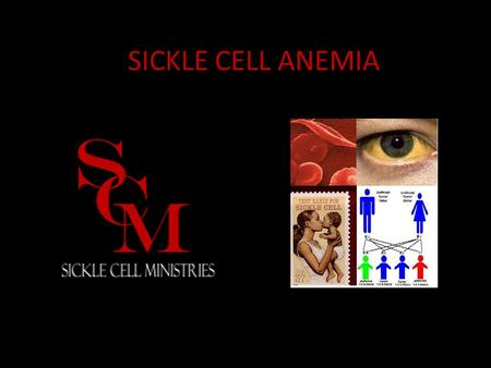 SICKLE CELL ANEMIA.