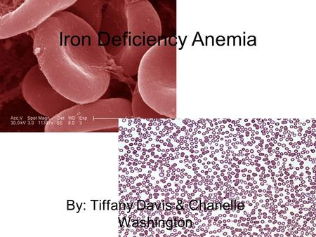 Iron Deficiency Anemia By: Tiffany Davis & Chanelle Washington.