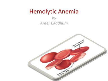 Hemolytic Anemia by Areej T.Kadhum. Haemolysis Normal life span of a RBC is 120 days (80-90 days in a full term infant). Senescent RBC is detected & cleared.