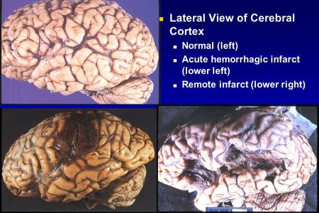 Lateral View of Cerebral Cortex Normal (left) Acute hemorrhagic infarct (lower left) Remote infarct (lower right)