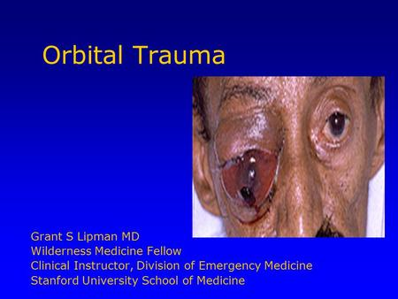 Orbital Trauma Grant S Lipman MD Wilderness Medicine Fellow Clinical Instructor, Division of Emergency Medicine Stanford University School of Medicine.