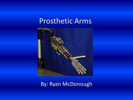 Prosthetic Arms By: Ryan McDonough. History of Prosthetic Arms Before this mainly prosthetic hands were made out of iron But in 1508 a knight had two.