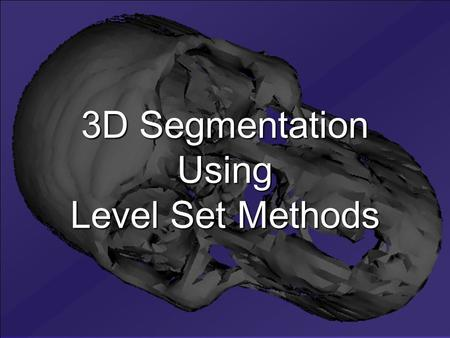 3D Segmentation Using Level Set Methods. Heriot-Watt University, Edinburgh, Scotland Zsolt Husz Mokhled Al-TarawnehÍzzet Canarslan University of Newcastle.