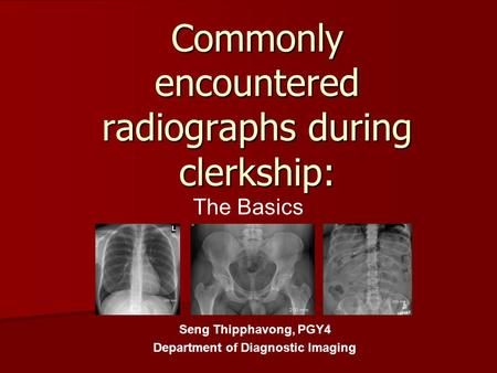 Commonly encountered radiographs during clerkship: The Basics Seng Thipphavong, PGY4 Department of Diagnostic Imaging.