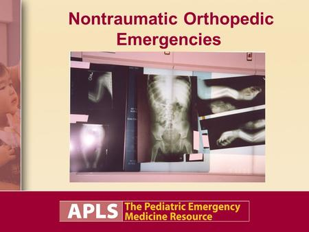 Nontraumatic Orthopedic Emergencies. Objectives Understand the pathophysiology of nontraumatic orthopedic conditions. Describe the management of nontraumatic.
