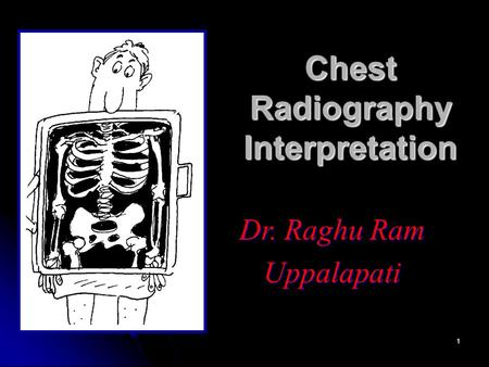 1 Chest Radiography Interpretation Dr. Raghu Ram Uppalapati.